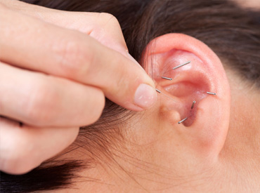 ear staple
